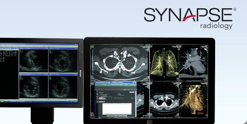 Synapse Radiology
